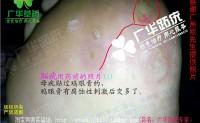 广华广州跖疣专家趾疣跎疣寻常疣鸡眼欧生