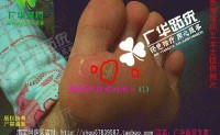 广华深圳跖疣专家趾疣跎疣寻常疣鸡眼王女士提供照片