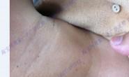 脖子腋下眼角 皮赘 丝状疣 小肉粒照片2
