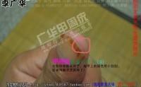 北京王先生的甲周疣用什么方法治疗好的—广华甲周疣 李广华好