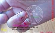 浙江省侯小姐治疗甲周疣寻常疣采用的是什么产品呢?淘宝网上的 广华甲周尤 一套就搞定了手指疣和寻常疣。