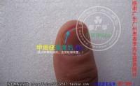 广东广州李先生甲周疣是这样康复的甲下疣也这么简单。手指寻常疣谁有治疗的好方法?寻常疣有何可靠的疗法?