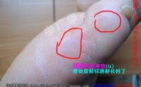 广东广州李先生广华跖尤趾尤广华跖疣跎疣瘊子老茧鸡眼脚疣1鸡眼和跖疣的区别图_本人治跖疣真实过程