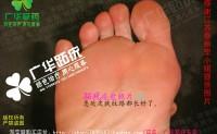 江苏泰州广华跖疣趾疣跎疣瘊子很多鸡眼脚疣,跖疣怎么治效果好中西医方法帮你轻松解决问题