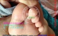 江苏徐州小朋友脚底长水泡很多鸡眼小洞广华跖疣完全康复,小朋友长跖疣用什么方法能根治呢?这里来看看过程照片。