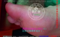 脚底跖疣的预防措施长水泡很多鸡眼小洞辽宁李广华跖疣会不会传染?脚底长疣;应该是趾疣吧;用冷冻治疗效果好吗?