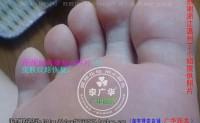 上海松江区杨先生脚底很多鸡眼用广华跖疣产品后是这样康复的, 脚上长了几个趾疣,在医院冷冻治疗,但在治疗过程中又长了好多,医生说没办法,只能一边长一边治,很痛…