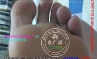 四川南充杨女士多发型跖疣连成块严重型趾疣也能好吗?你的跖疣趾疣好了吗?是用的什么方法?