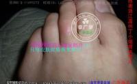 浙江省温州市丁小姐脚趾长开花瘊子鸡眼老茧用李广华跖疣用后康复,吃薏米开始见效时趾疣的变化是怎么样的。
