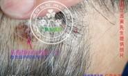 直播—江西黄先生头上长头皮疣肉疙瘩头癣使用过程照片,在治疗中********