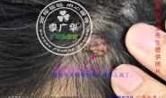 直播—山东金先生头上长头皮疣肉疙瘩头癣使用过程照片,在治疗中********