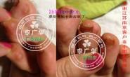 江苏省南京市金小姐脚趾长了很多硬鸡眼趾疣跖疣是不能贴鸡眼膏用后康复脚趾长的是不是甲周疣呢?
