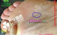 山东省泰州市徐先生用广华跖疣趾疣脚底鸡眼刺瘊脚底长了镶嵌式跖怎么办呢?就一个像鸡眼在脚掌心。