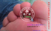 山东省潍坊市徐先生脚底长满了很多硬鸡眼是病毒感染的跖疣是不能贴鸡眼膏的刺激了会增多用前中后康复照片供参考。