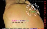 山东省烟台市丁小姐脚趾长满了很多硬鸡眼趾疣跖疣是会传染了哦用前中后康复照片供跖疣患者们参考。