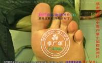陕西省汉中市景小姐脚趾长满了很多硬鸡眼趾疣跖疣怎么治疗呢用前中后康复照片对照参考