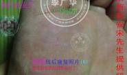 陕西省西安市宋先生脚底长满跖疣刺瘊肉刺用李广华跖尤产品镶嵌式拓疣很多硬鸡眼的康复照片供参考。