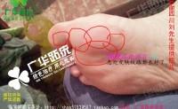 四川省刘先生广华跖疣趾疣很多水泡跎疣寻常疣怎么治疗刺瘊子如何防预瘊子种类有什么危害呢?