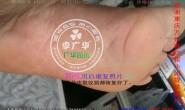 重庆市万州区崔小姐脚趾长满了很多硬鸡眼趾疣寻常疣跖疣最快康复方法用前1