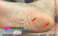 广东陈小姐脚底长大鸡眼老茧脚垫镶嵌式跖疣血泡刺肉刺钱币疣