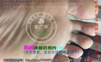 广东深圳林先生脚底很多鸡眼老茧脚垫镶嵌式群发型李广华跖疣血泡刺肉刺广华尤李