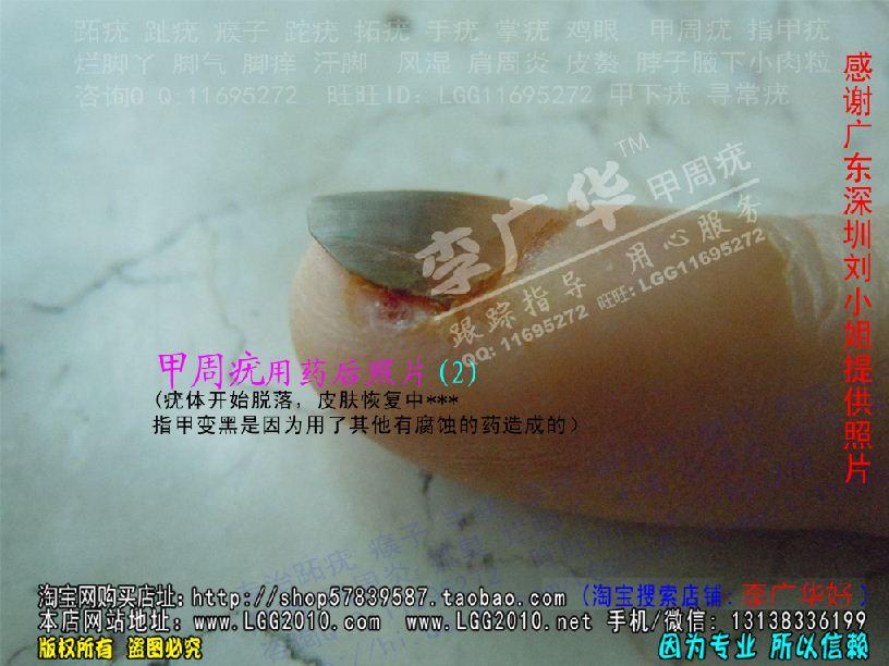 广华跖疣专家 甲周疣甲下疣掌疣寻常疣深圳刘小姐2