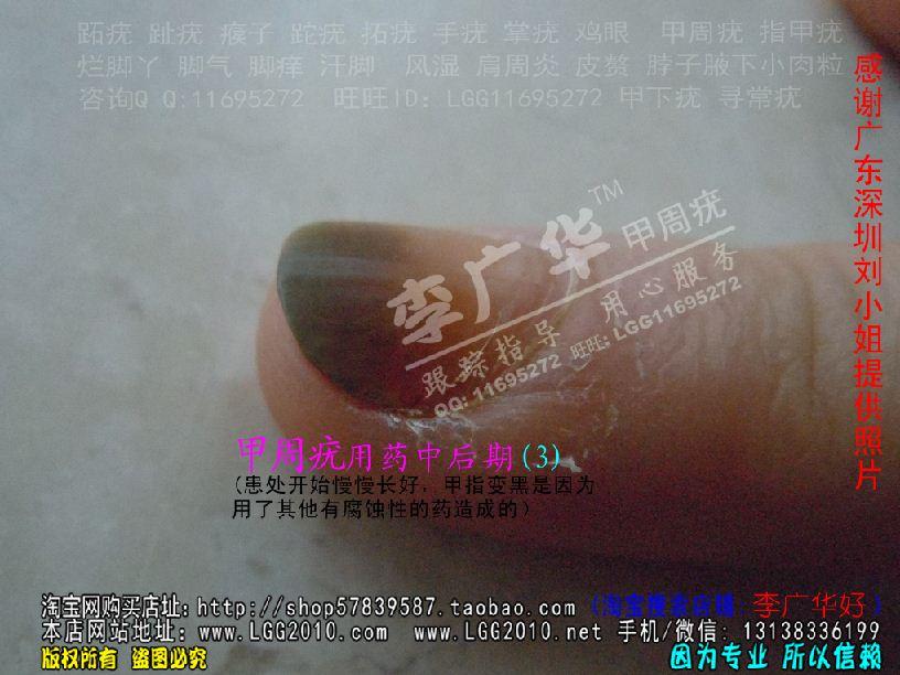 广华跖疣专家 甲周疣甲下疣掌疣寻常疣深圳刘小姐3