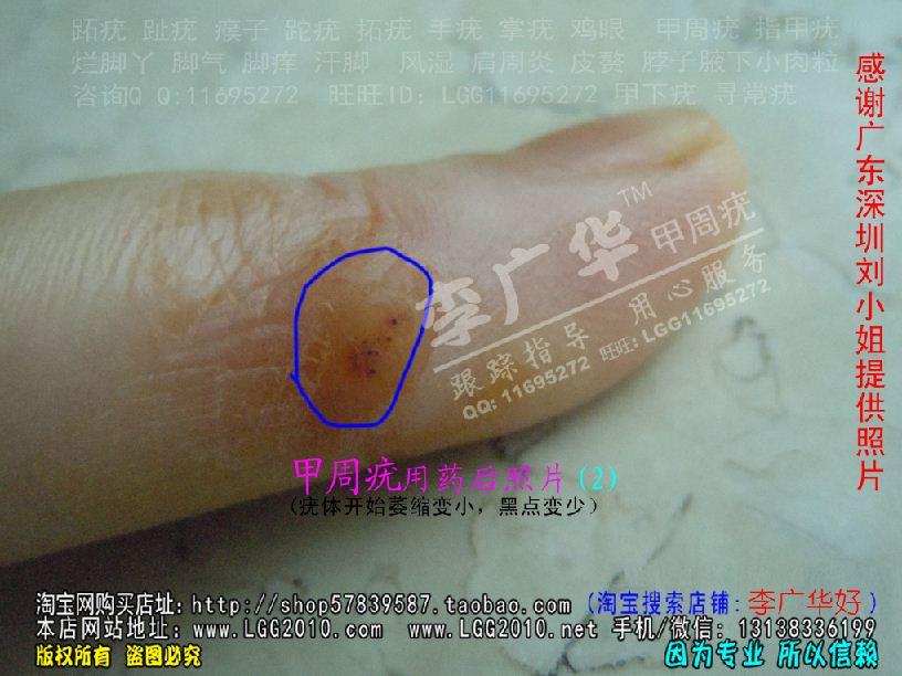 李广华跖疣专家 甲周疣甲下疣掌疣寻常疣深圳刘小姐2