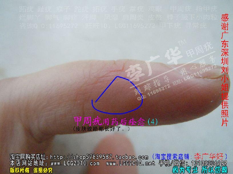 李广华跖疣专家 甲周疣甲下疣掌疣寻常疣深圳刘小姐4