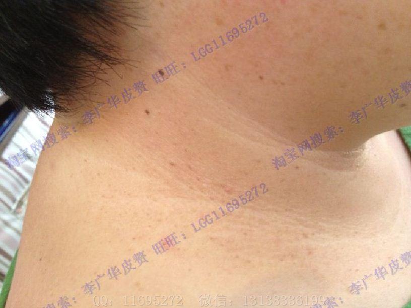 脖子丝状疣图片 (10)