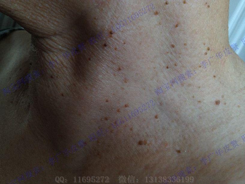 脖子丝状疣图片 (15)