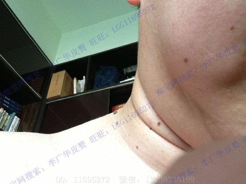 广华皮赘丝状疣小肉粒 (1)