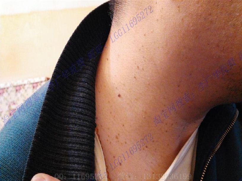 皮赘丝状疣初期图片 (1)