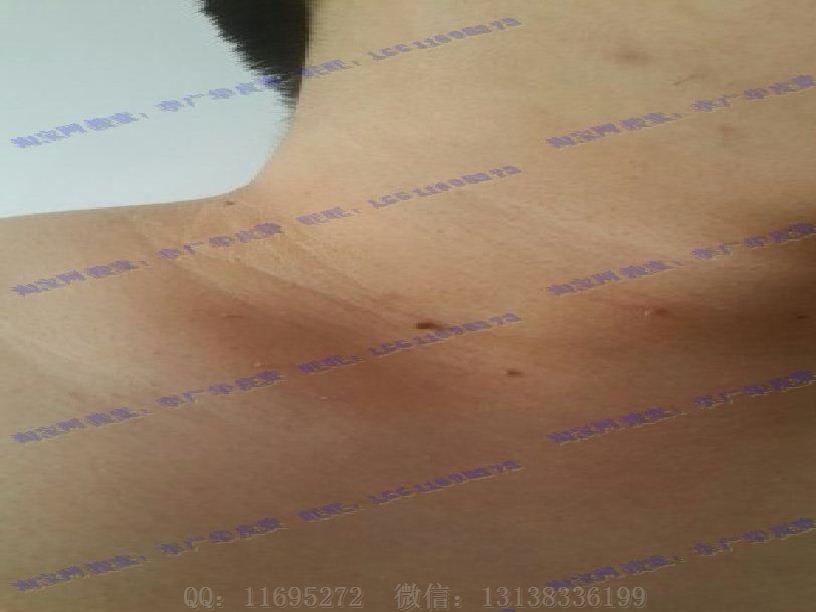 皮赘丝状疣初期图片 (5)