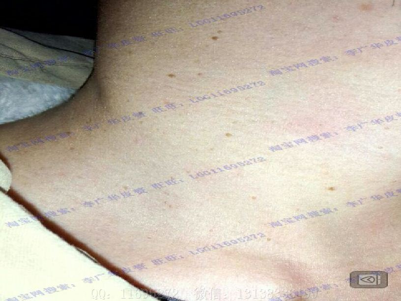 皮赘丝状疣初期图片 (7)