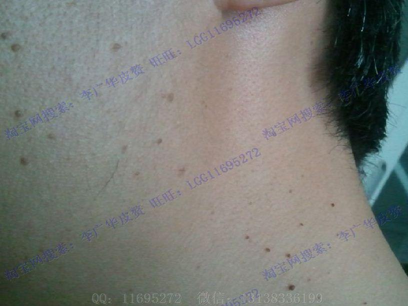 皮赘丝状疣初期图片 (8)