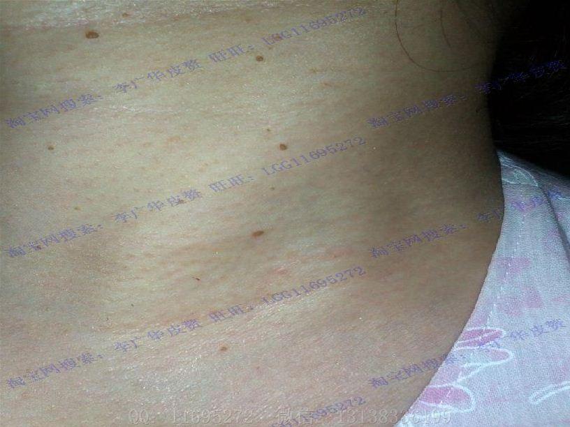 皮赘丝状疣初期图片 (10)