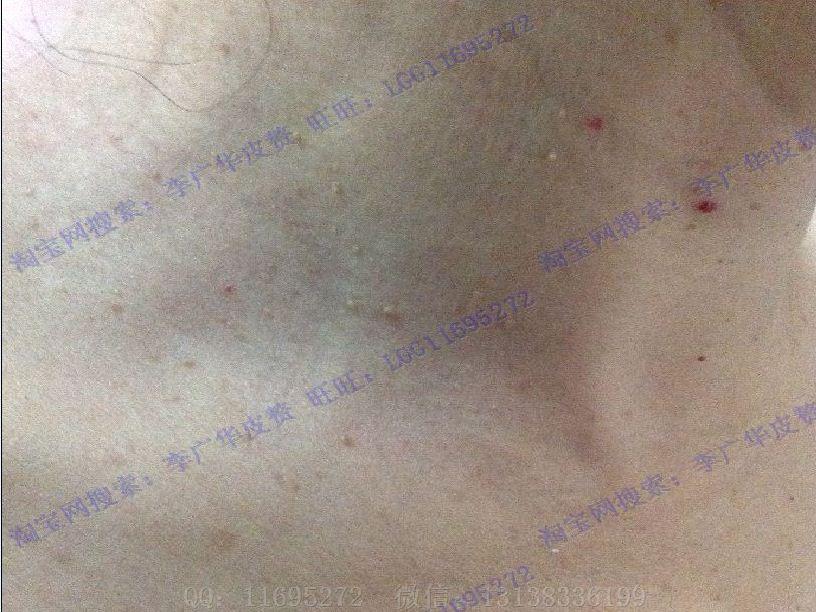 皮赘与丝状疣的图片 (22)