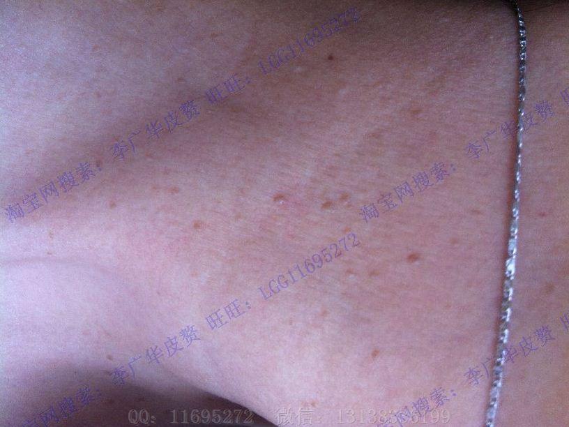 丝状疣图片 (12)