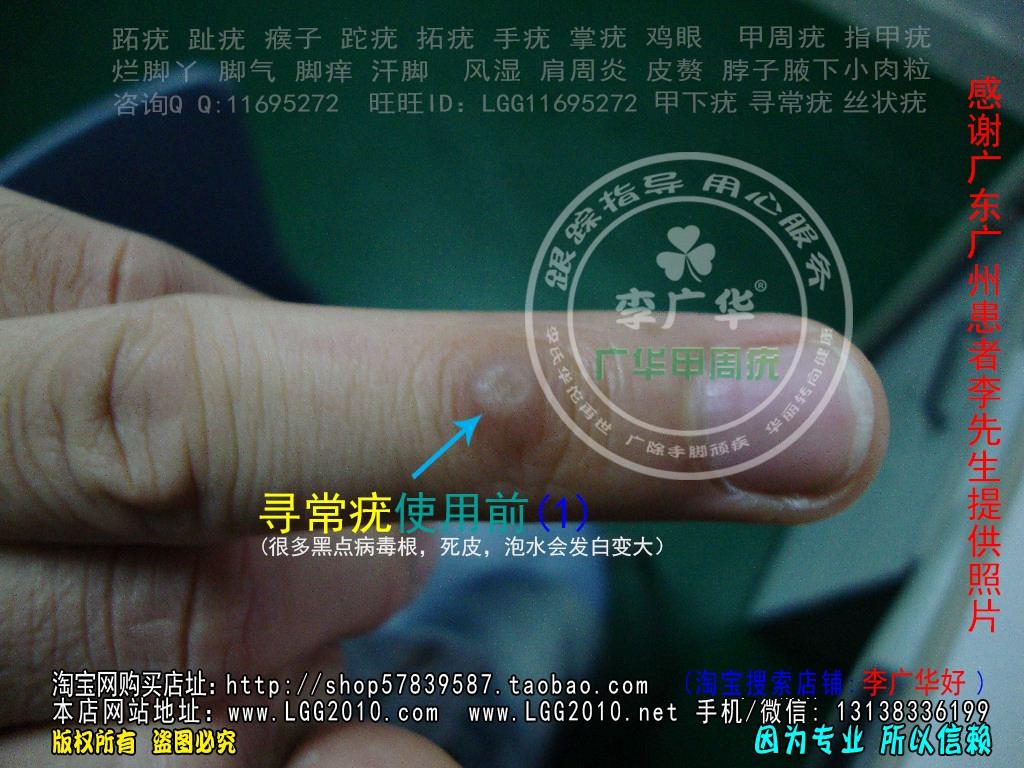 广东广州李先生寻常疣谁有治疗的好方法?寻常疣何可靠的疗法?1 