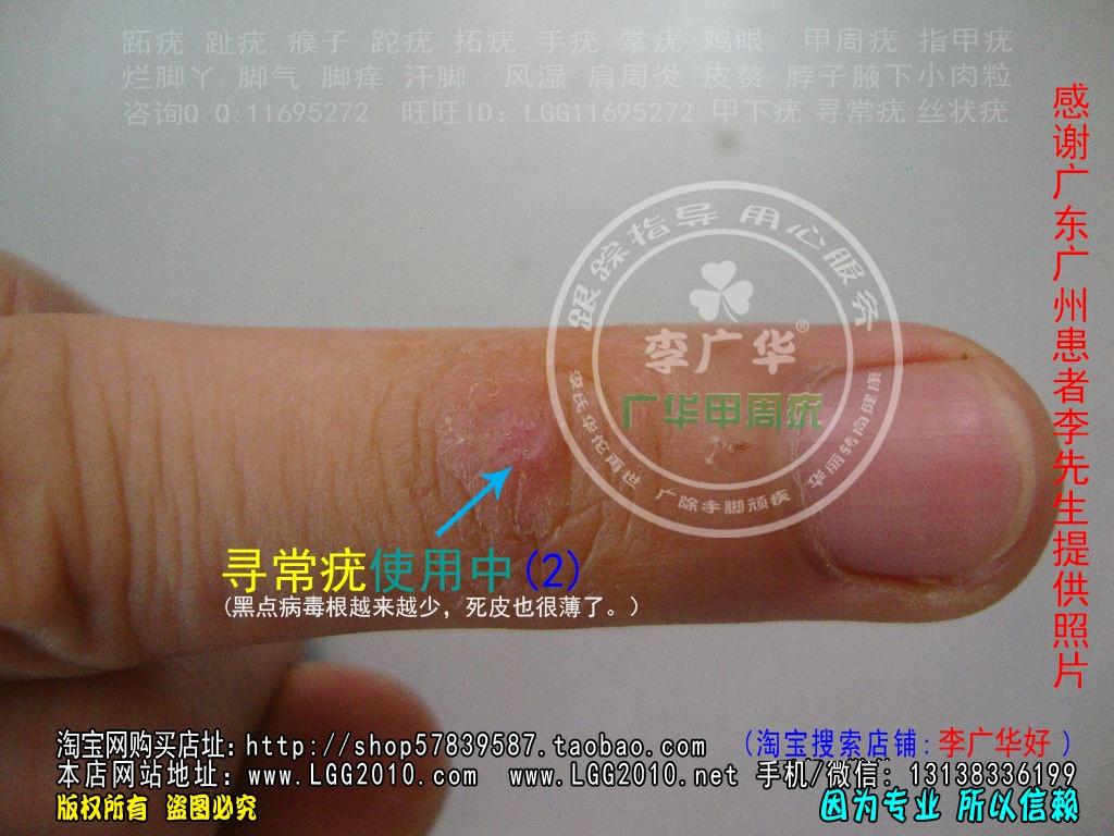 广东广州李先生寻常疣谁有治疗的好方法?寻常疣何可靠的疗法?2