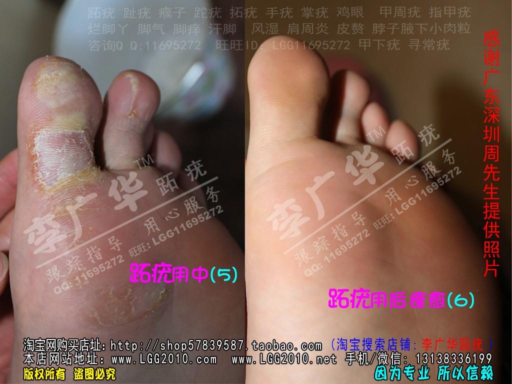 广东深圳周先生广华跖尤趾尤跎疣瘊子很多鸡眼脚疣3