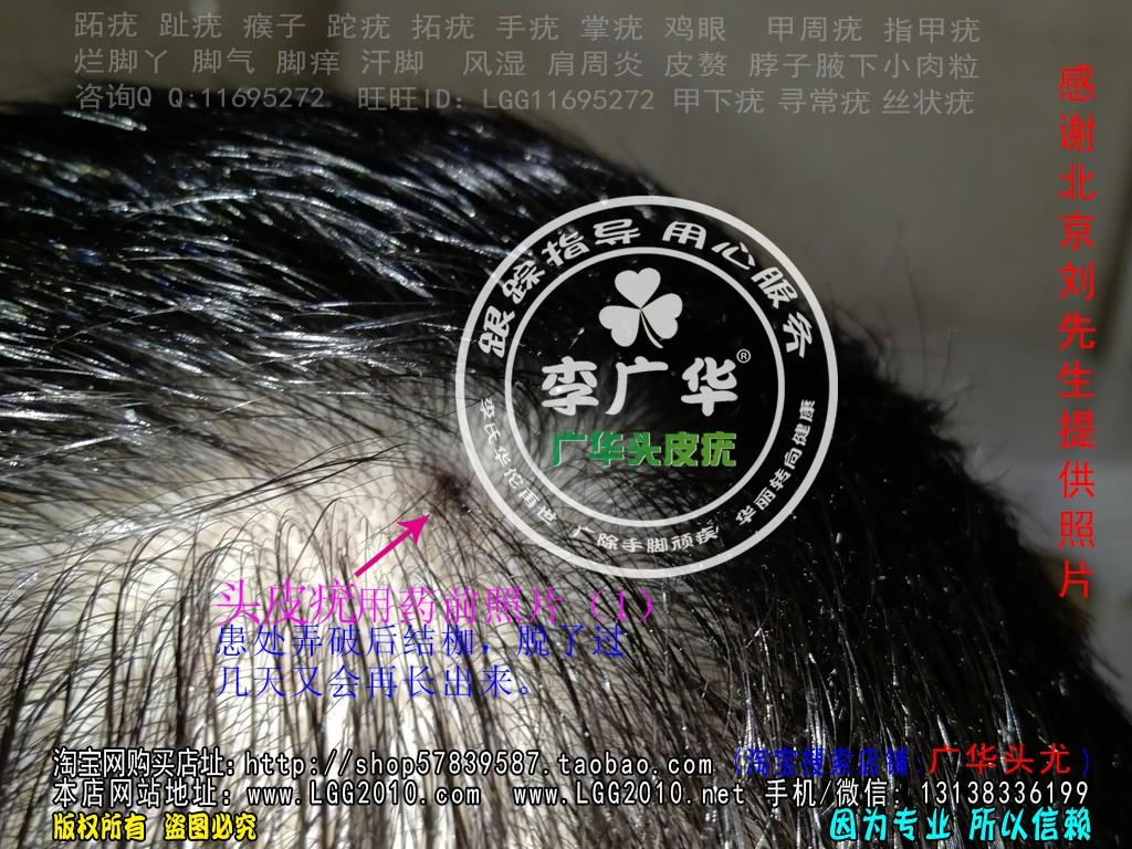 头上长头皮疣肉疙瘩头癣使用前照片1