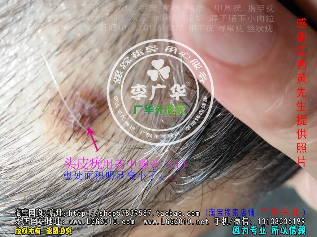 江西黄先生头上长头皮疣肉疙瘩头癣使用中照片4