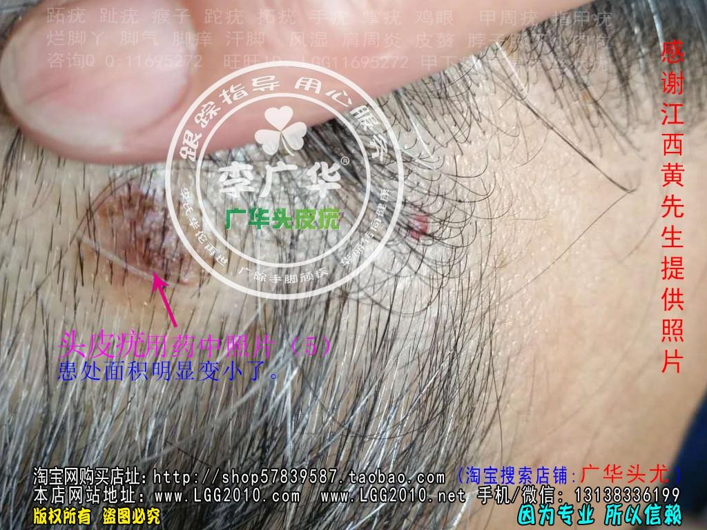 江西黄先生头上长头皮疣肉疙瘩头癣使用中照片5