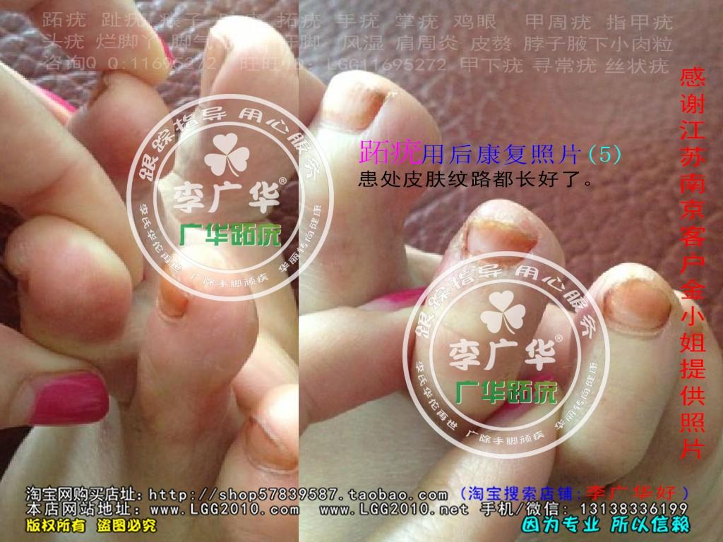 江苏省南京市金小姐脚趾长了很多硬鸡眼趾疣跖疣是不能贴鸡眼膏用后康复5