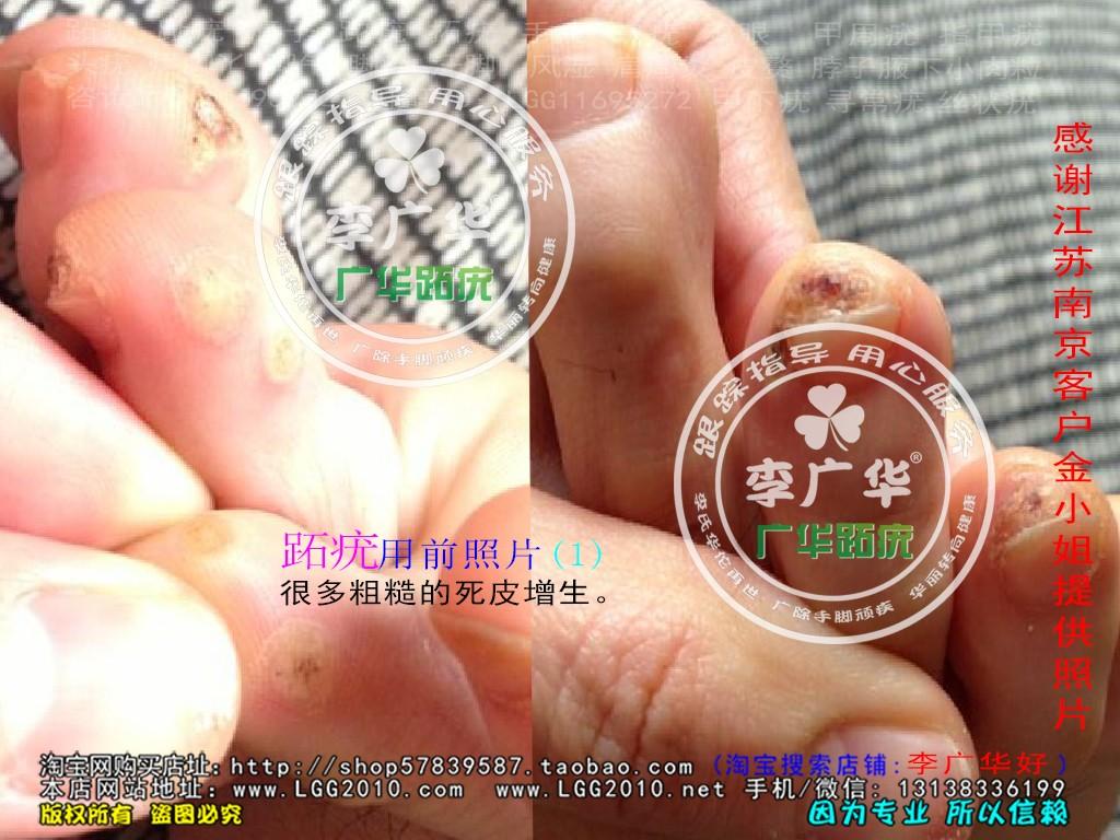 江苏省南京市金小姐脚趾长了很多硬鸡眼趾疣跖疣是不能贴鸡眼膏用前1