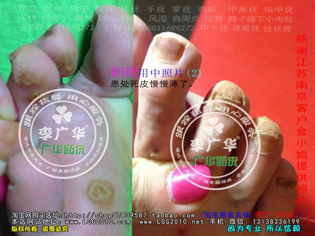 江苏省南京市金小姐脚趾长了很多硬鸡眼趾疣跖疣是不能贴鸡眼膏用前2