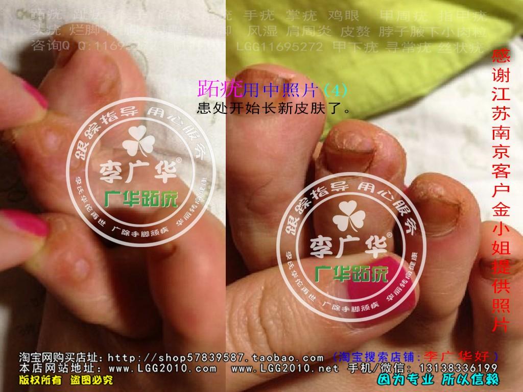 江苏省南京市金小姐脚趾长了很多硬鸡眼趾疣跖疣是不能贴鸡眼膏用中4