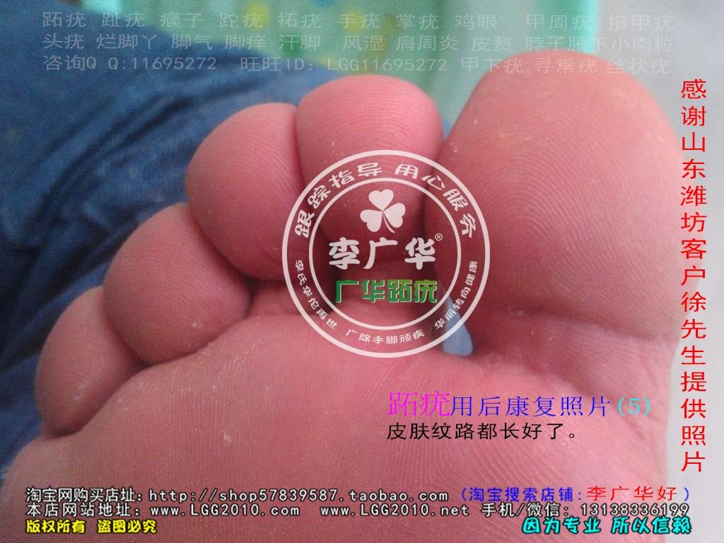 山东省潍坊市徐先生脚底长满了很多硬鸡眼是病毒感染的跖疣是不能贴鸡眼膏的刺激了会增多用后康复照片5